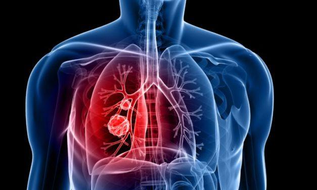 Dor na coluna quando respira – conheça as suas formas