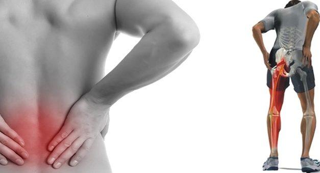 Dor no Nervo Ciático – Conheça esse mal que aflige a muitas pessoas
